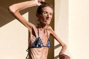 """oh my good """"wanita ini hanya tinggal tulang""""  Extreme Anorexic"""